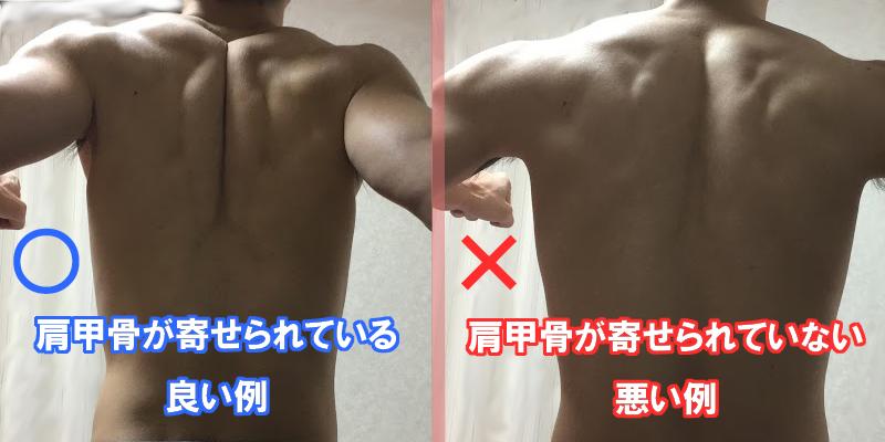 甲骨 肩 ベンチ プレス 自重トレでベンチプレスによる肩の痛みを治そう 肩甲骨のアライメント別対策|AnonNote|note